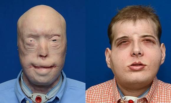 Antes y después del trasplante