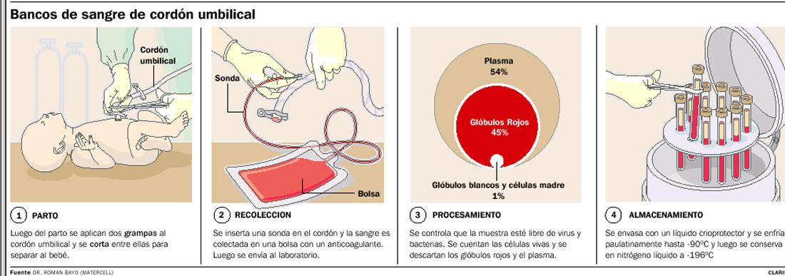 Procesamiento de Preservación de Células Madre del Cordón Umbilical